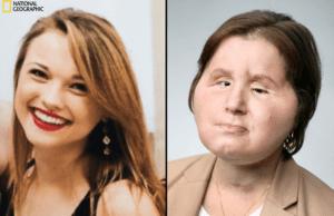 Il nuovo volto di Katie, il documentario di National Geographic che racconta il primo trapianto di volto al mondo